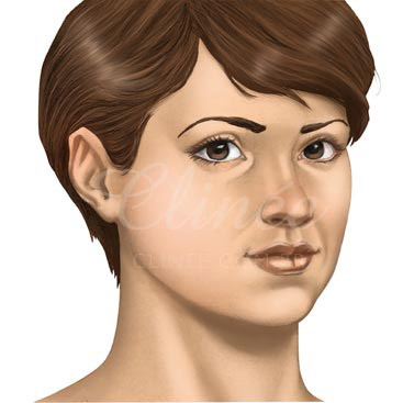 bichectomia-indicacao