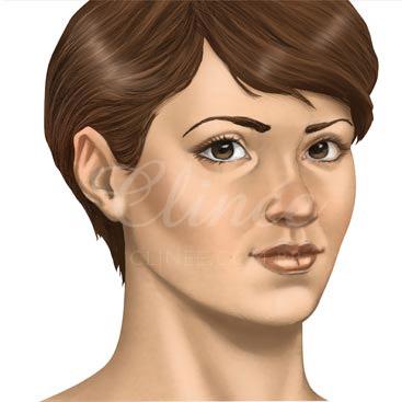bichectomia-resultado