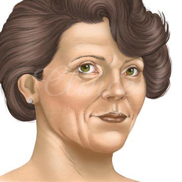 lifting-facial-indicacao