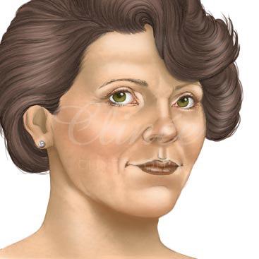 lifting-facial-resultado