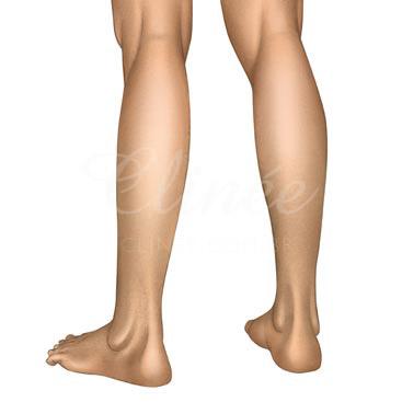 protese-de-panturrilha-indicacao (1)
