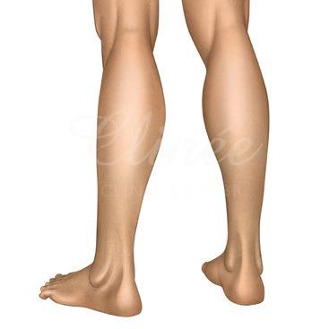 protese-de-panturrilha-resultado (1)
